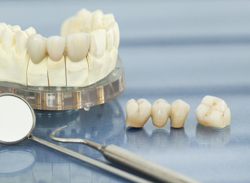 Dental Crowns Gold Coast